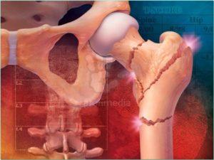 Последствия и осложнения остеопороза