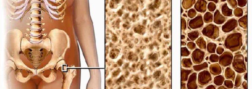 Общая информация об остеопорозе